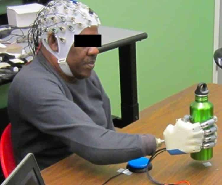 New UH research has demonstrated that an amputee can grasp with a bionic hand, powered only by his thoughts. From the University of Houston.